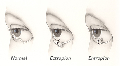 Best Eye surgery in Mira road